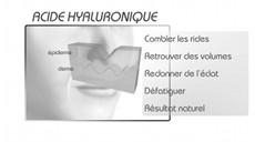 Vidéo acide hyaluronique Nice
